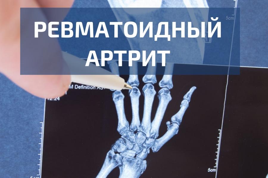 Как се лекува реактивен артрит?